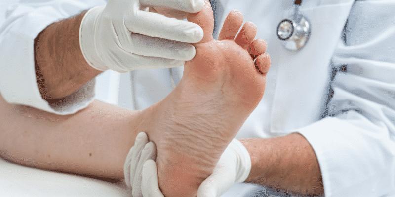 eczema pied photo